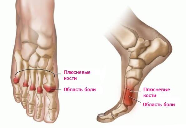 причины болей в плюсневом суставе