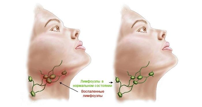 Как лечить воспаление лимфоузлов на шее у детей