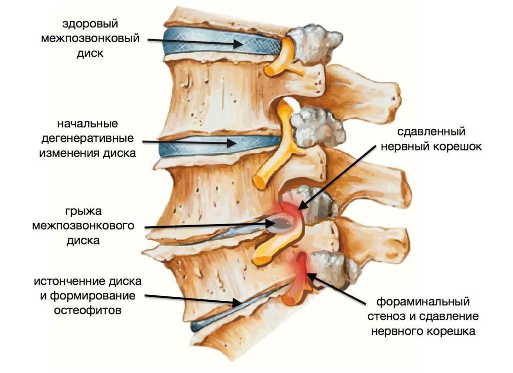 Симптомы протрузий и грыж поясничного отдела позвоночника