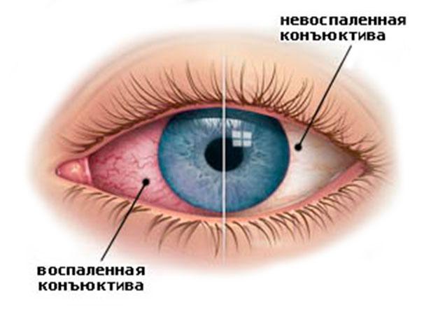 Конъюнктивит глаз у беременных 76